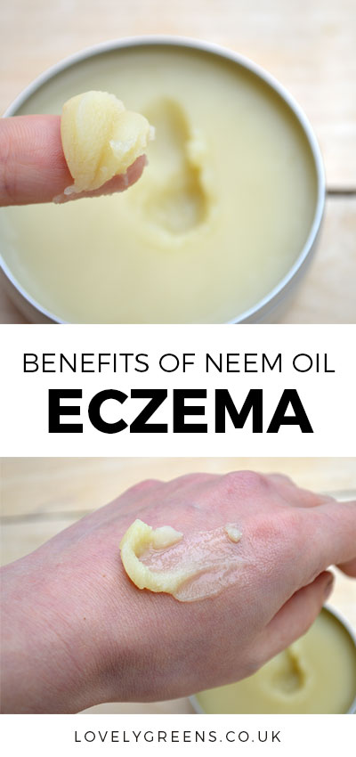 Neem oil for Eczema: Practitoners of Ayurvedic medicine use Neem oil for Eczema and many other skin issues. Learn how it works to treat the symptoms of eczema including redness, itchiness, and irritation #neemoil #eczema #eczemacream #naturaleczemacream #neem #ayurvedic #dermatitis #psoriasiscream